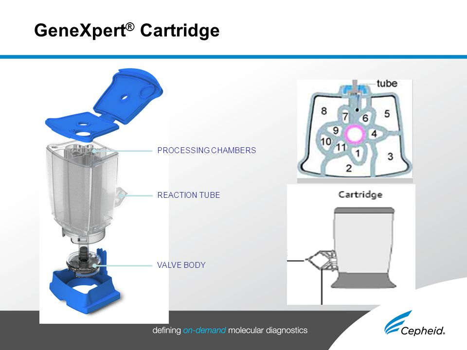 Cepheid Genexpert Clinical Value And Product Details Ppt