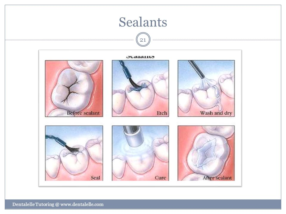 Sealants Dentalelle