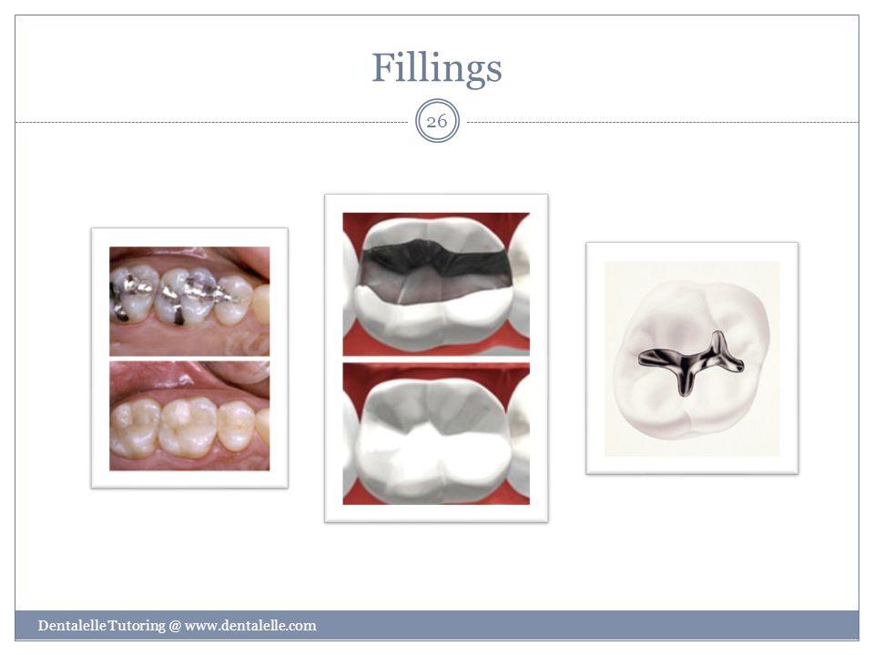 Fillings Dentalelle Tutoring @ www.dentalelle.com