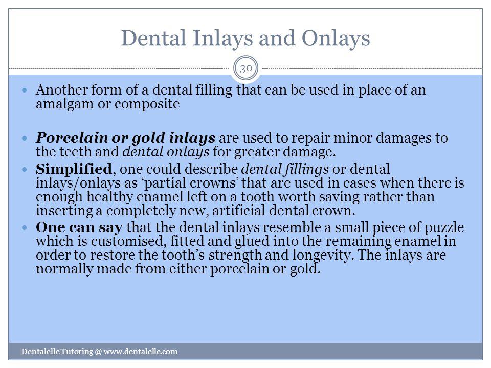 Dental Inlays and Onlays
