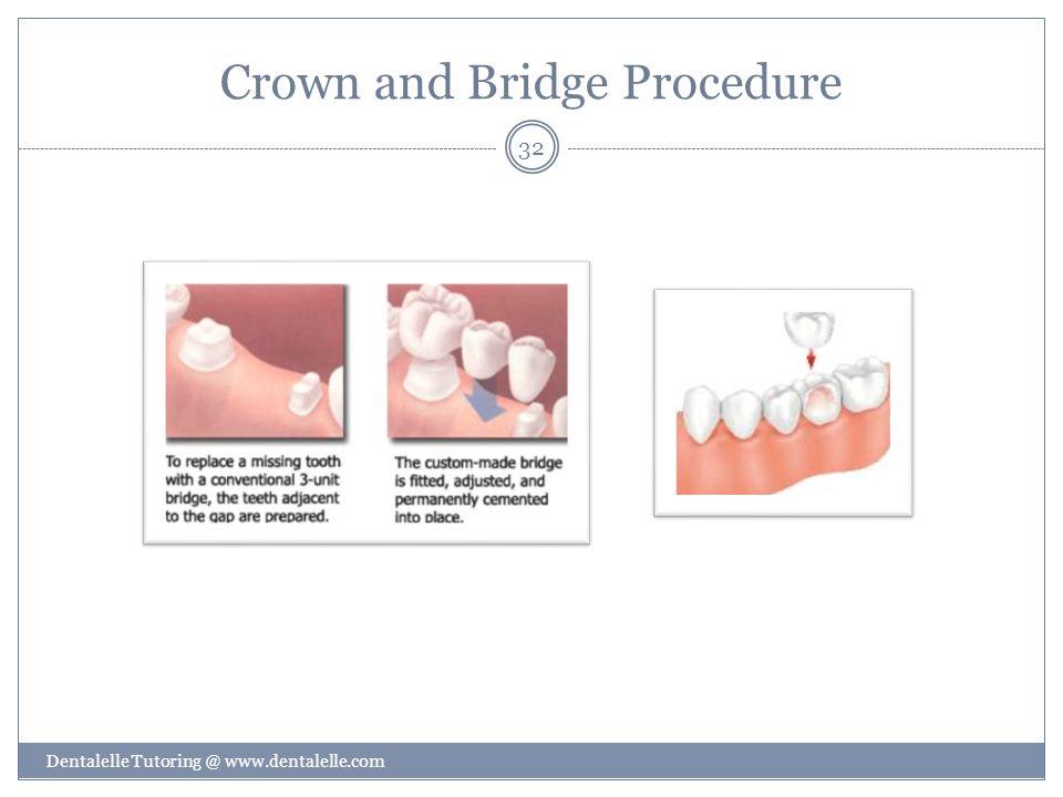 Crown and Bridge Procedure