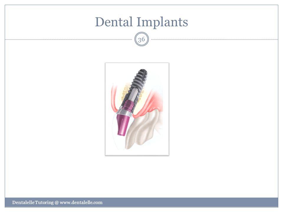 Dental Implants Dentalelle Tutoring @ www.dentalelle.com