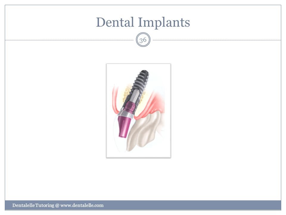 Dental Implants Dentalelle