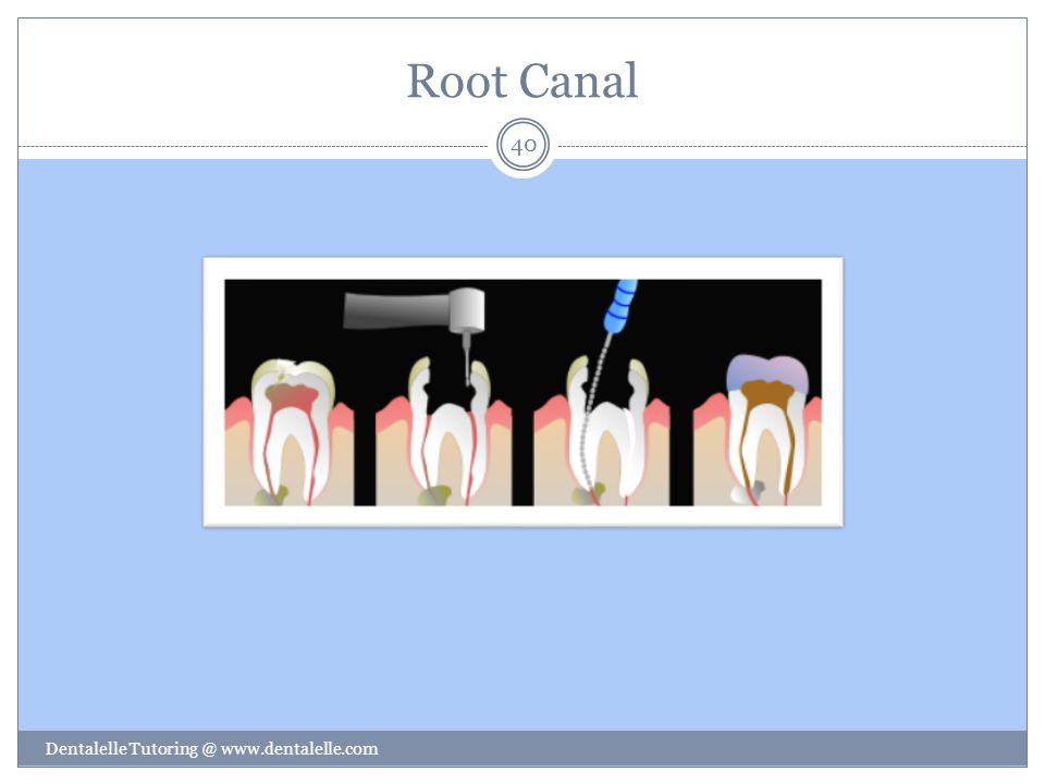 Root Canal Dentalelle Tutoring @ www.dentalelle.com