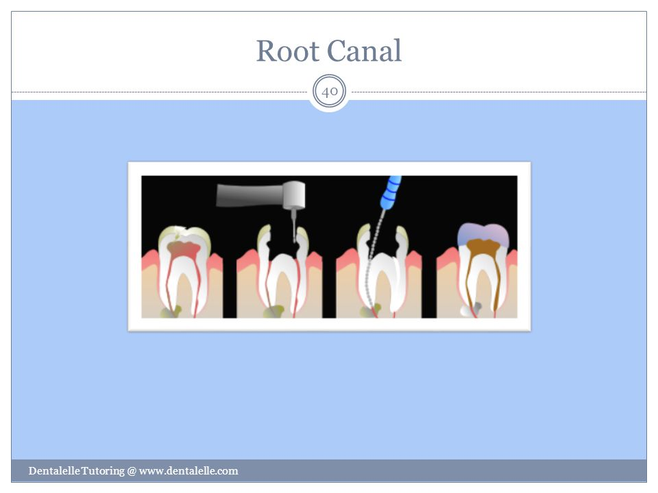 Root Canal Dentalelle