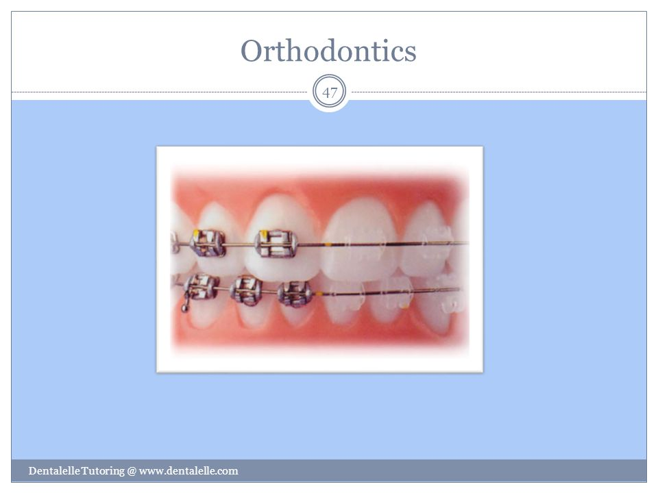 Orthodontics Dentalelle