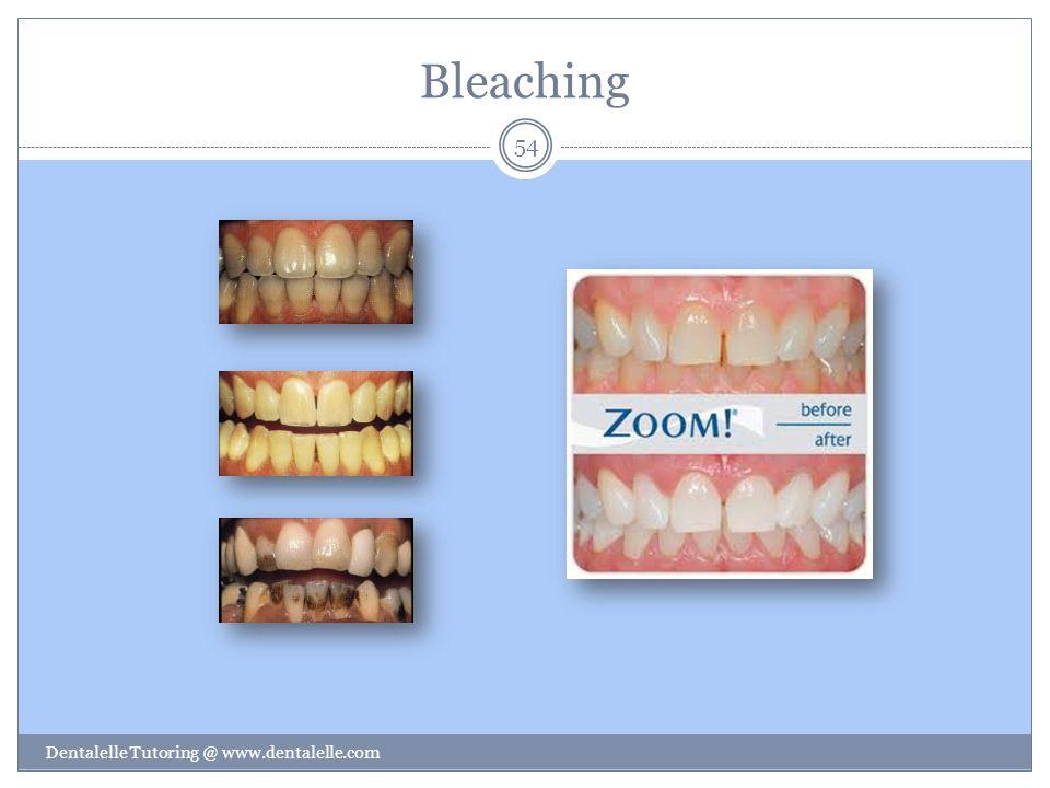 Bleaching Dentalelle Tutoring @ www.dentalelle.com