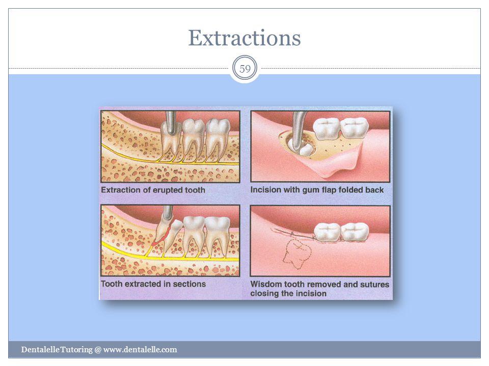 Extractions Dentalelle Tutoring @ www.dentalelle.com