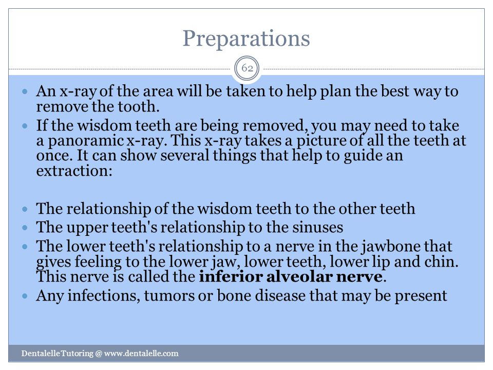 Preparations An x-ray of the area will be taken to help plan the best way to remove the tooth.