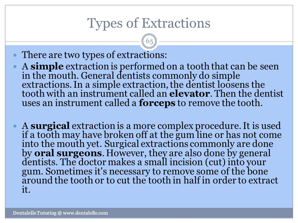 Types of Extractions There are two types of extractions: