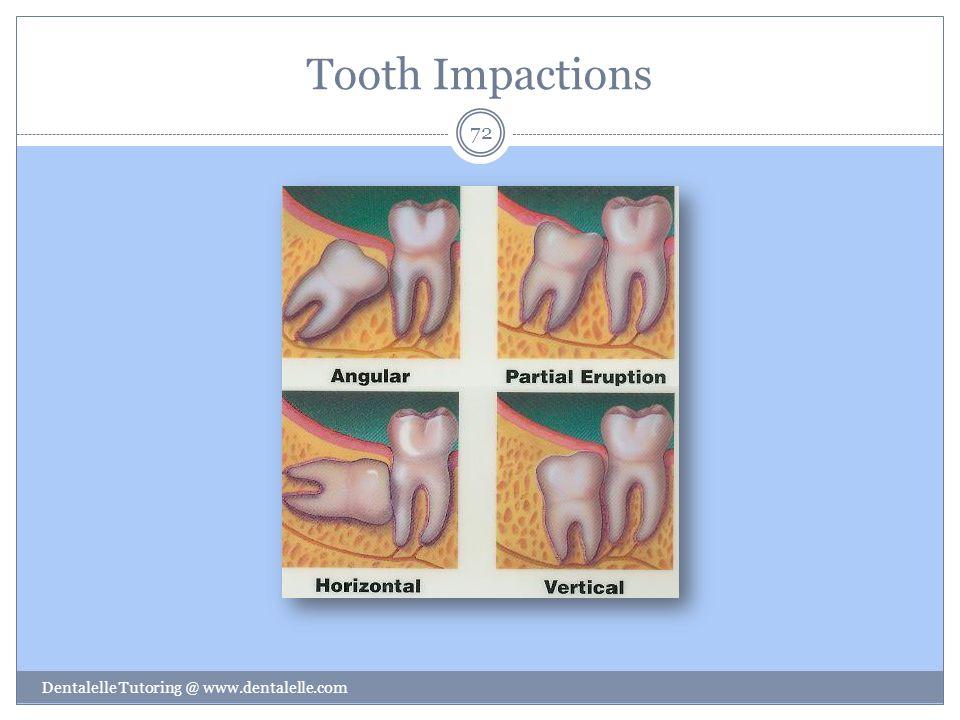 Tooth Impactions Dentalelle Tutoring @ www.dentalelle.com