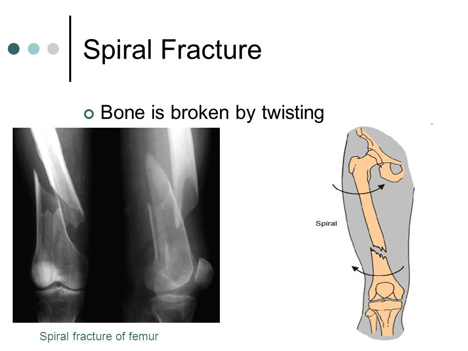 Spiral Fracture Bone is broken by twisting Spiral fracture of femur