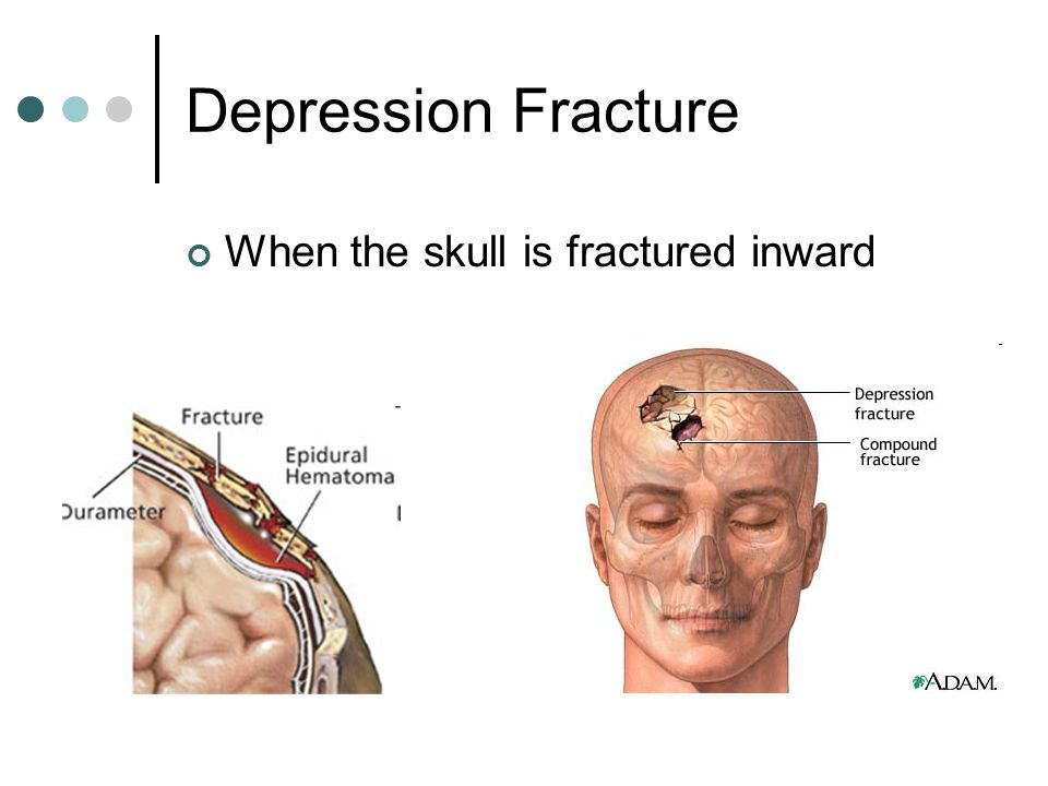Depression Fracture When the skull is fractured inward