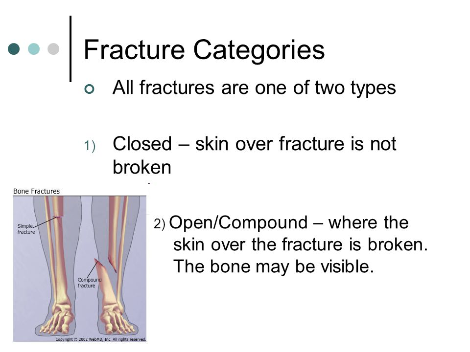 Fracture Categories All fractures are one of two types