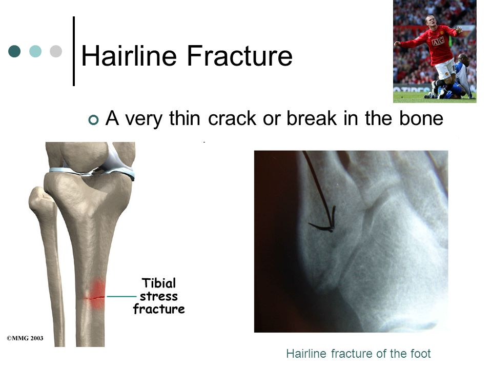 Hairline Fracture A very thin crack or break in the bone