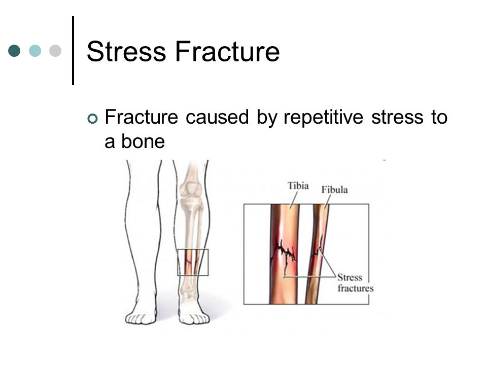 Stress Fracture Fracture caused by repetitive stress to a bone
