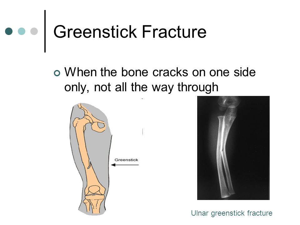 Greenstick Fracture When the bone cracks on one side only, not all the way through.
