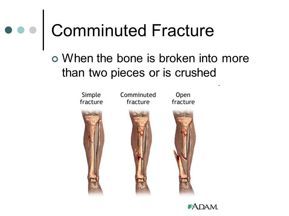 Comminuted Fracture When the bone is broken into more than two pieces or is crushed