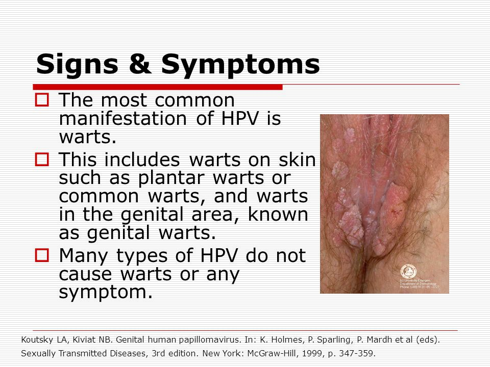 Types of sexually transmitted diseases images 946