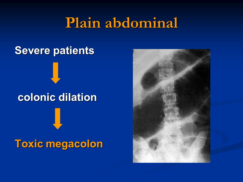Case A 25 Year Old Woman A 4 M History Of Abdominal Pain