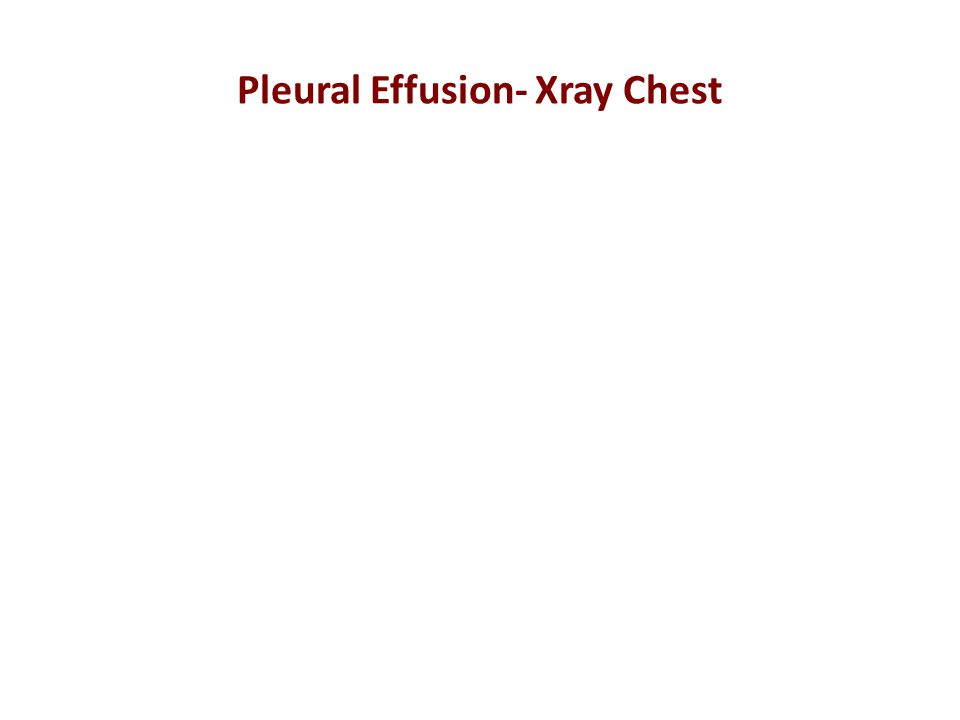 Pleural Effusion- Xray Chest