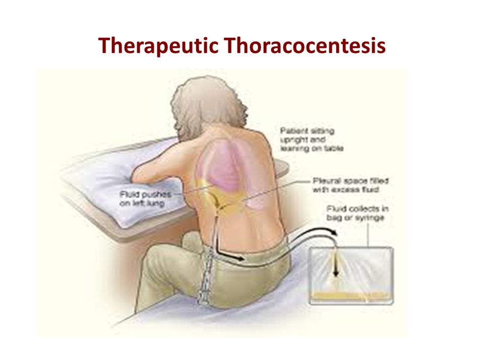 Therapeutic Thoracocentesis