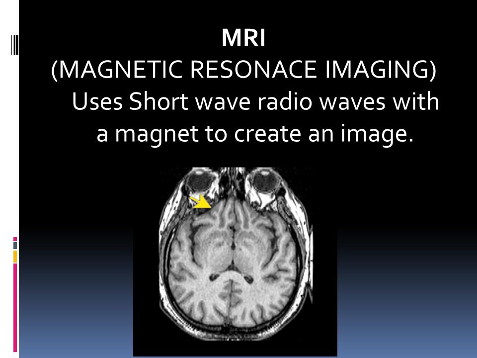 (MAGNETIC RESONACE IMAGING)