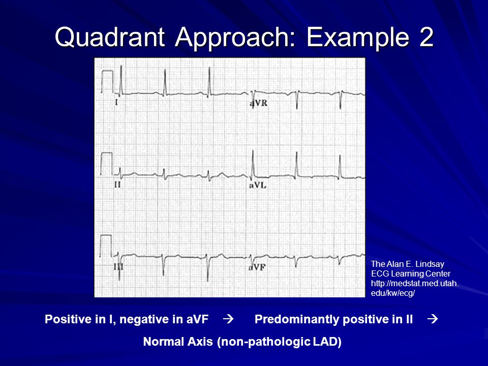 OVERVIEW OF EKG AND TELEMETRY - ppt video online download