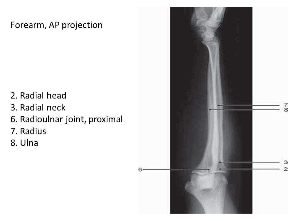 Forearm, AP projection 2. Radial head. 3. Radial neck. 6. Radioulnar joint, proximal. 7. Radius.