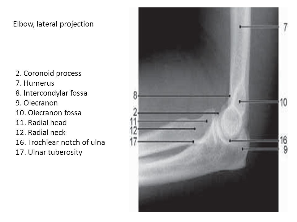 Elbow, lateral projection