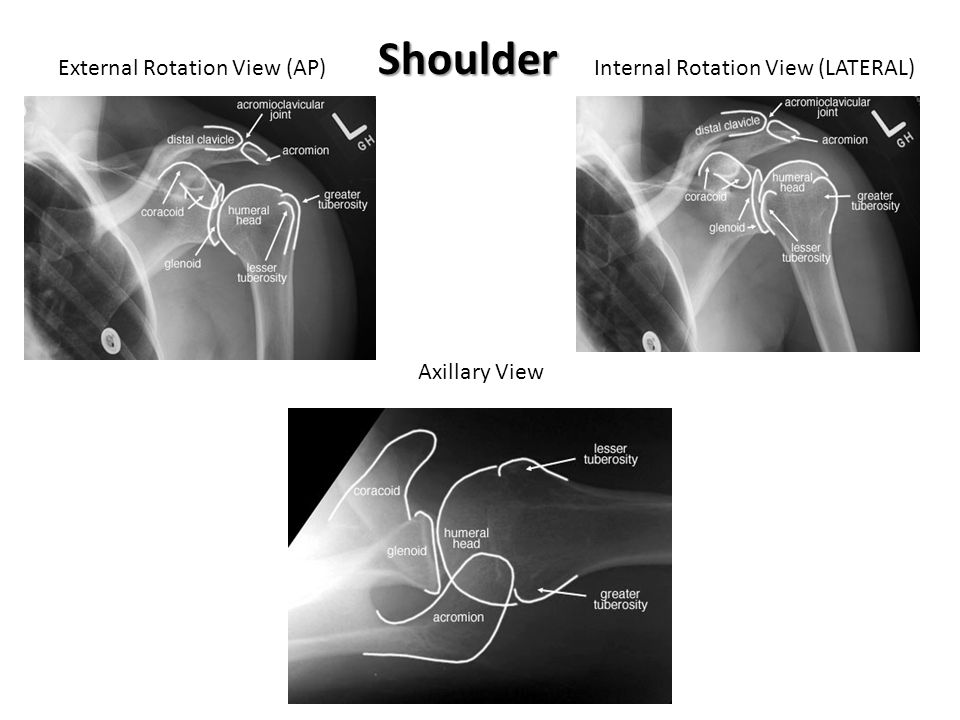 Shoulder External Rotation View (AP) Internal Rotation View (LATERAL)
