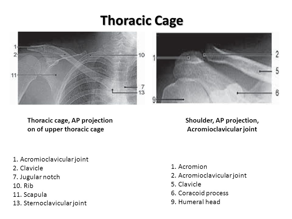 Thoracic Cage Thoracic cage, AP projection on of upper thoracic cage