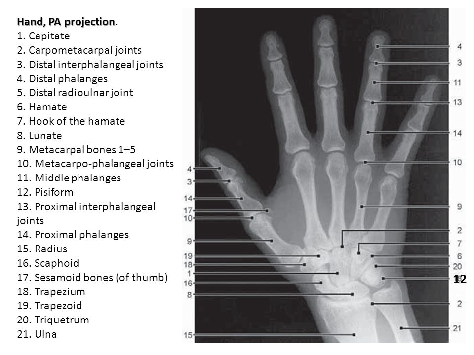 12 Hand, PA projection. 1. Capitate 2. Carpometacarpal joints