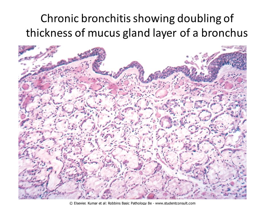 Chronic bronchitis showing doubling of thickness of mucus gland layer of a bronchus