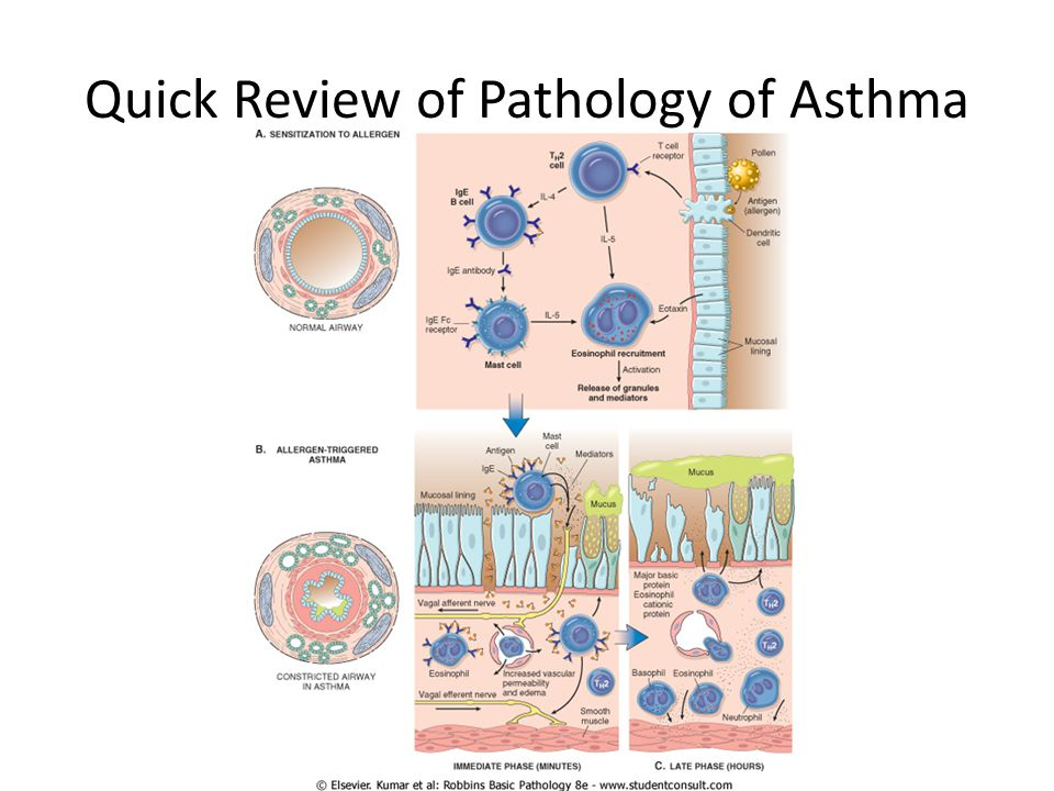Quick Review of Pathology of Asthma