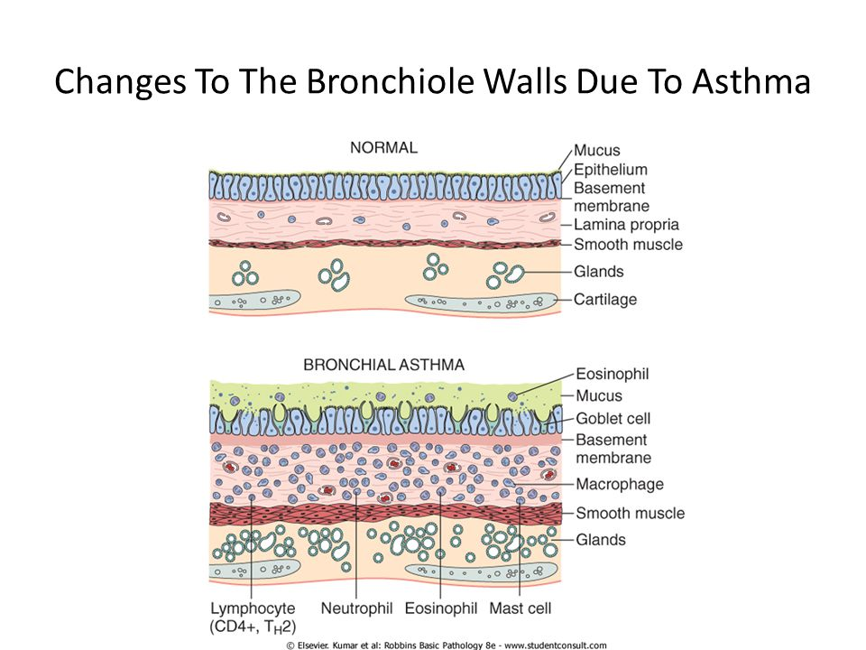 Changes To The Bronchiole Walls Due To Asthma