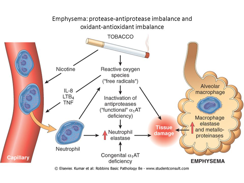 Emphysema: protease-antiprotease imbalance and oxidant-antioxidant imbalance