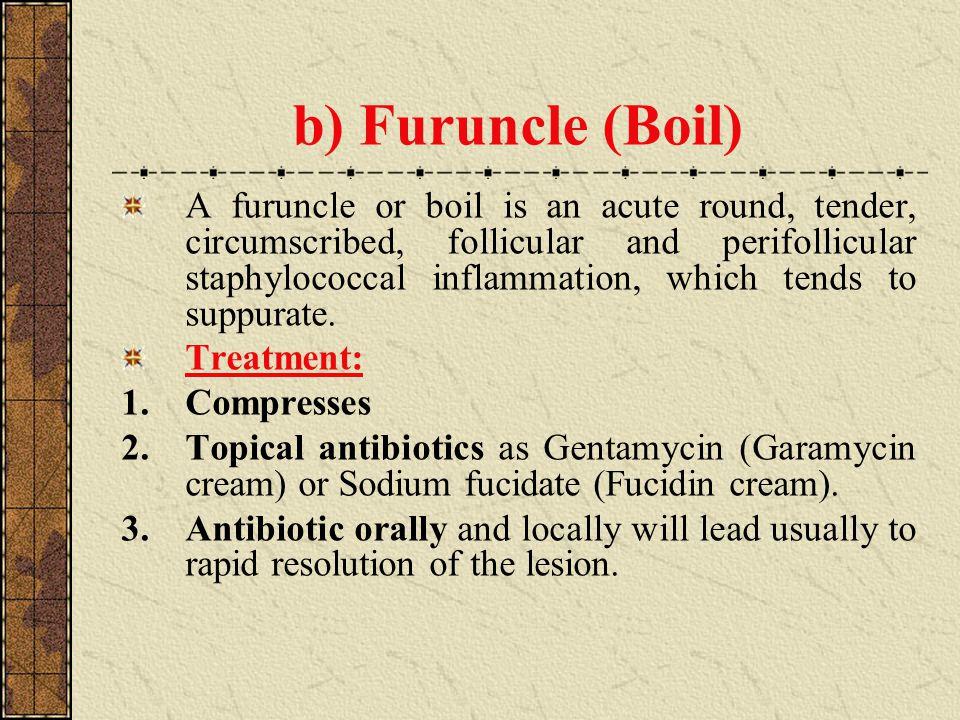 Cloxacillin For Boils