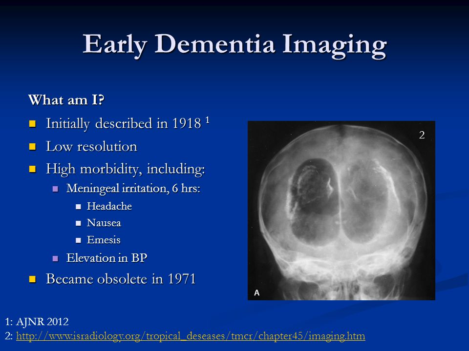 imaging in dementia  options for clinical practice