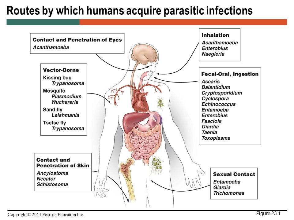 Describe the routes by which an infection can get into the body