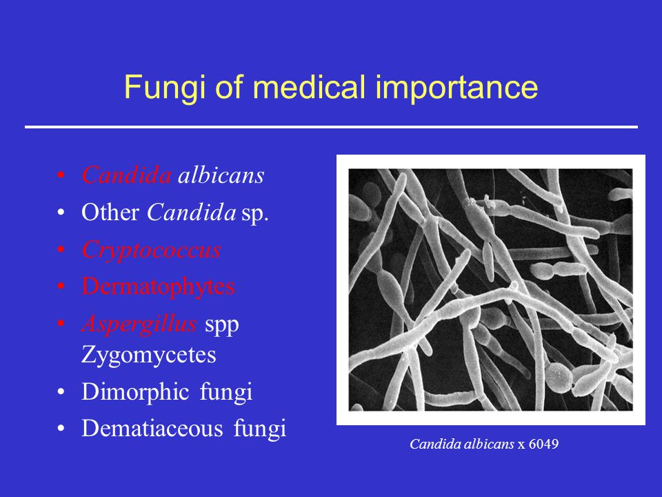 importance of medical fungi Fungi are simple plant forms, and include mushrooms uses of fungus by verneda lights june 13 fungi have important culinary, medical, agricultural and industrial uses fungi can be used to create dyes, medications and eco-friendly building materials.