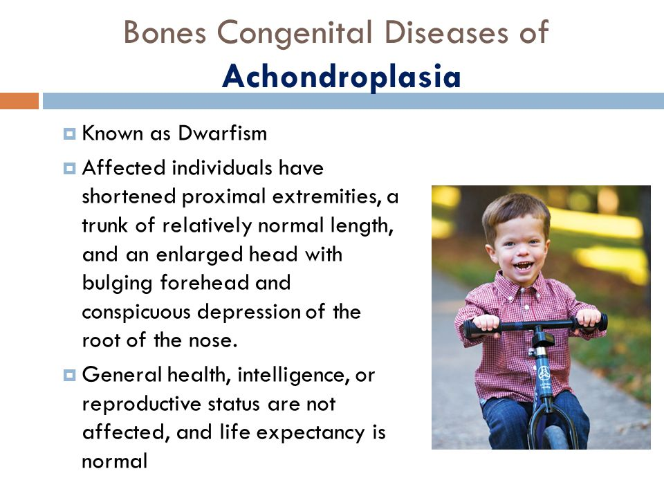an analysis of acondroplasia a genetic bone disorder