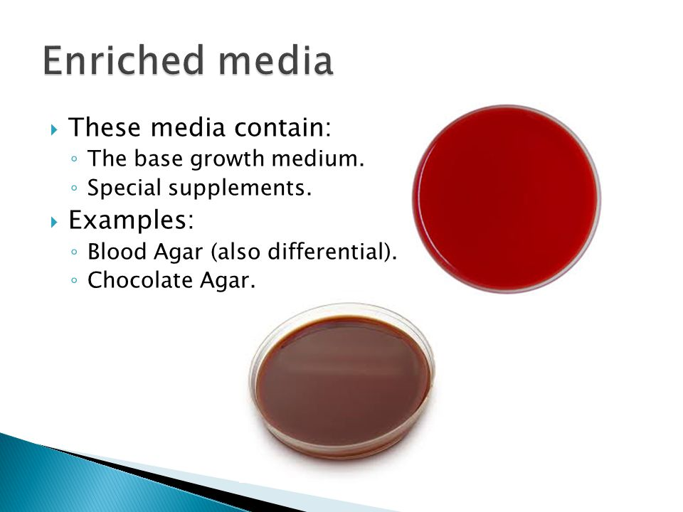 Enriched media These media contain: Examples: The base growth medium.