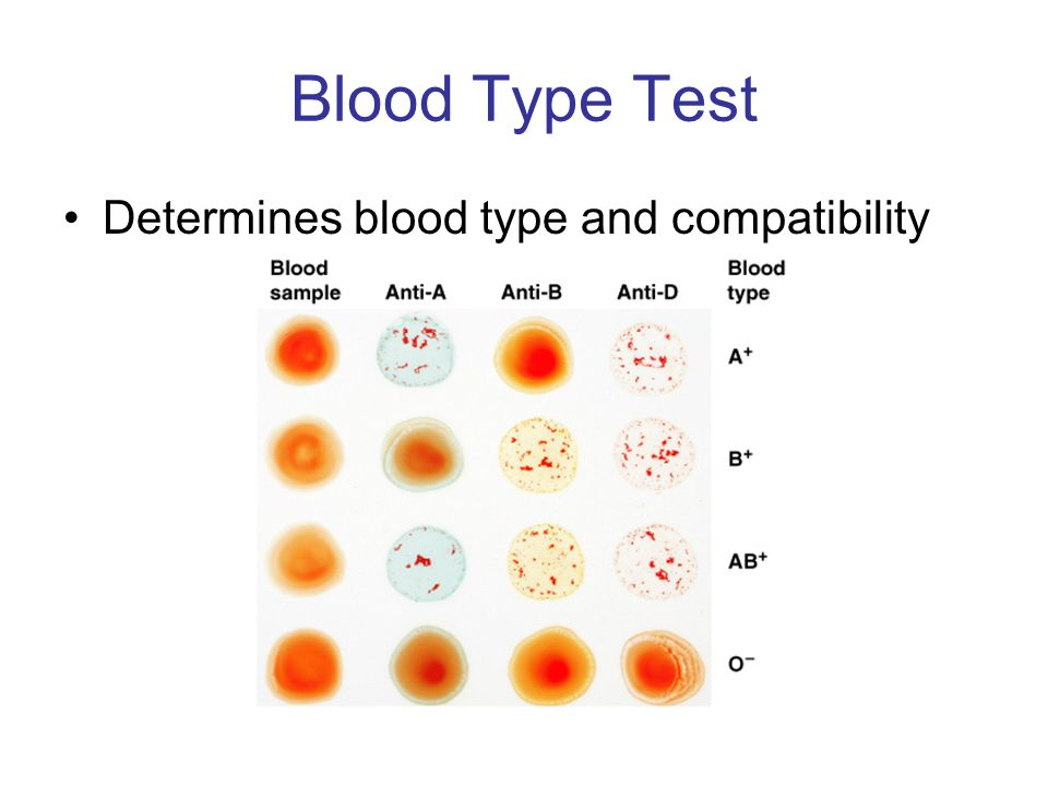 blood typing Not sure what your blood type is you can find out at one of our blood typing  events below preference will be given to those who meet the blood donor  eligibility.