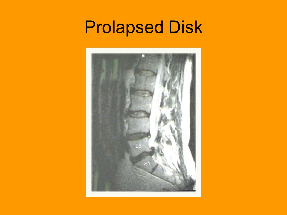 Prolapsed Disk