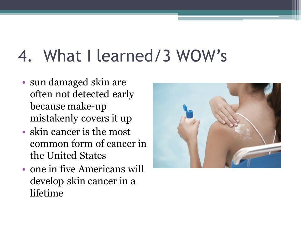 Skin Cancer Daniel M, Alice W, Grace K. - ppt video online download