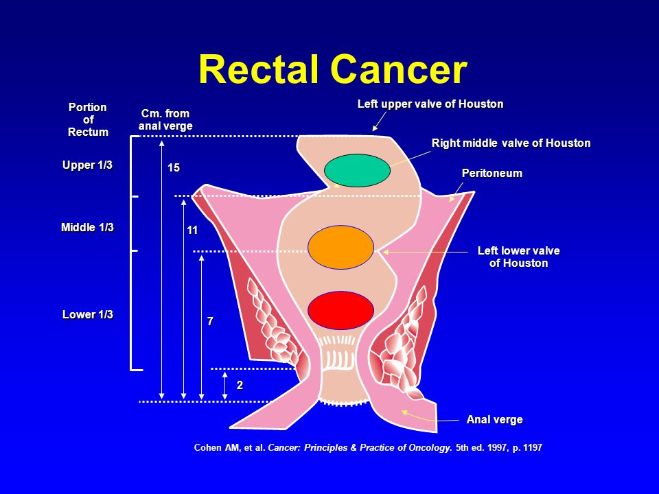 New Developments in the Treatment of Colorectal Cancer ...