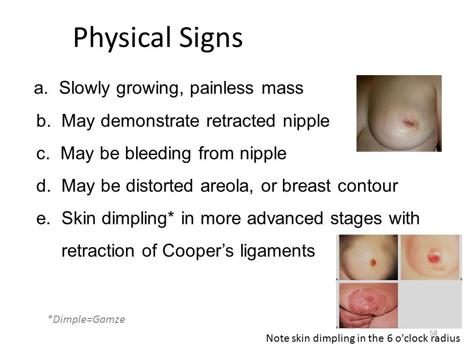 symptoms breast growing