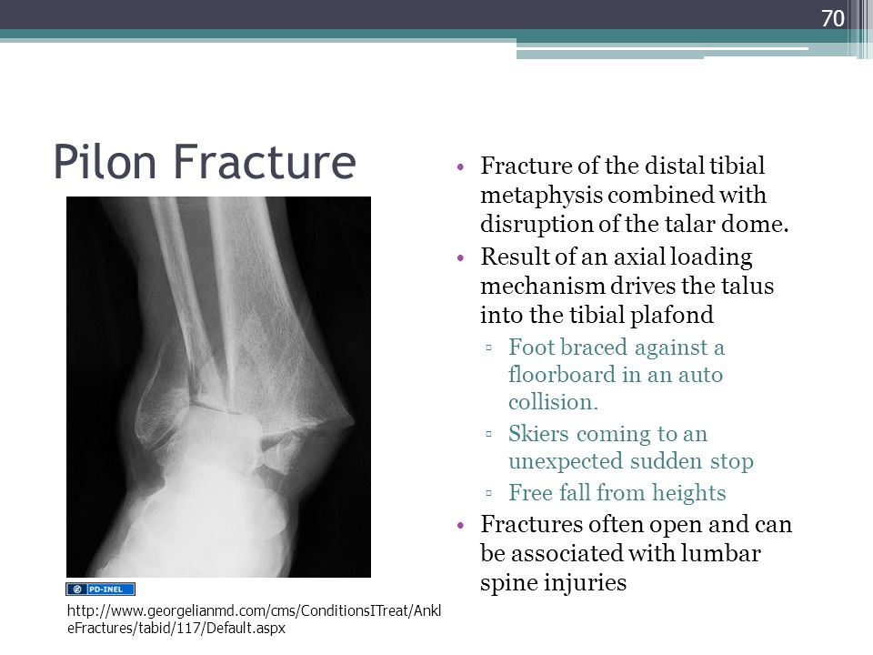 Project ghana emergency medicine collaborative ppt download - Tibial plafond fracture classification ...