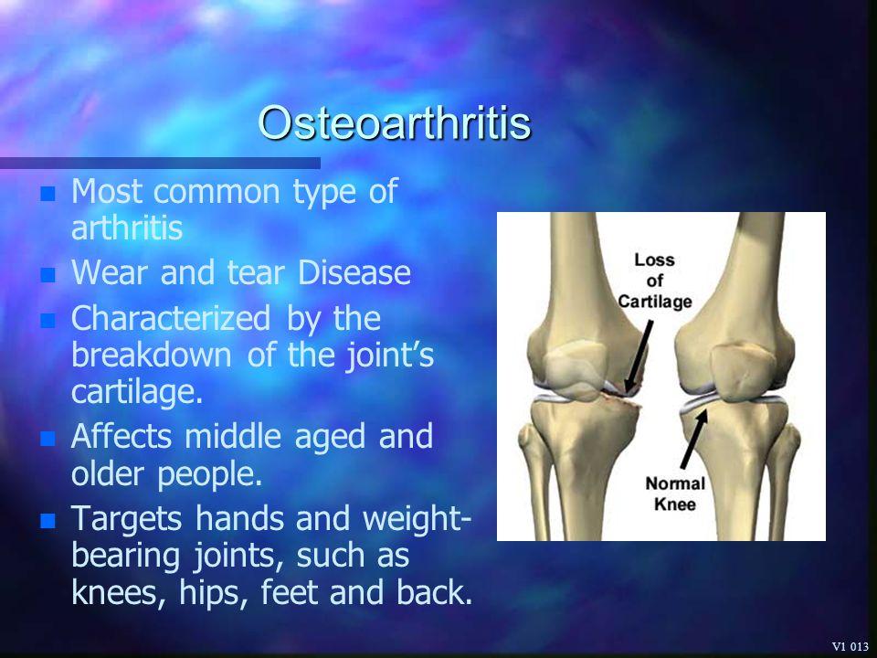 Understanding Arthritis Pain and Treatment Options